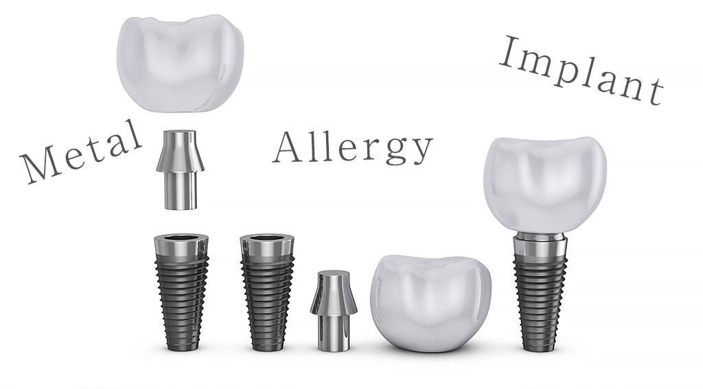 金属アレルギーでもインプラント治療はできる?
