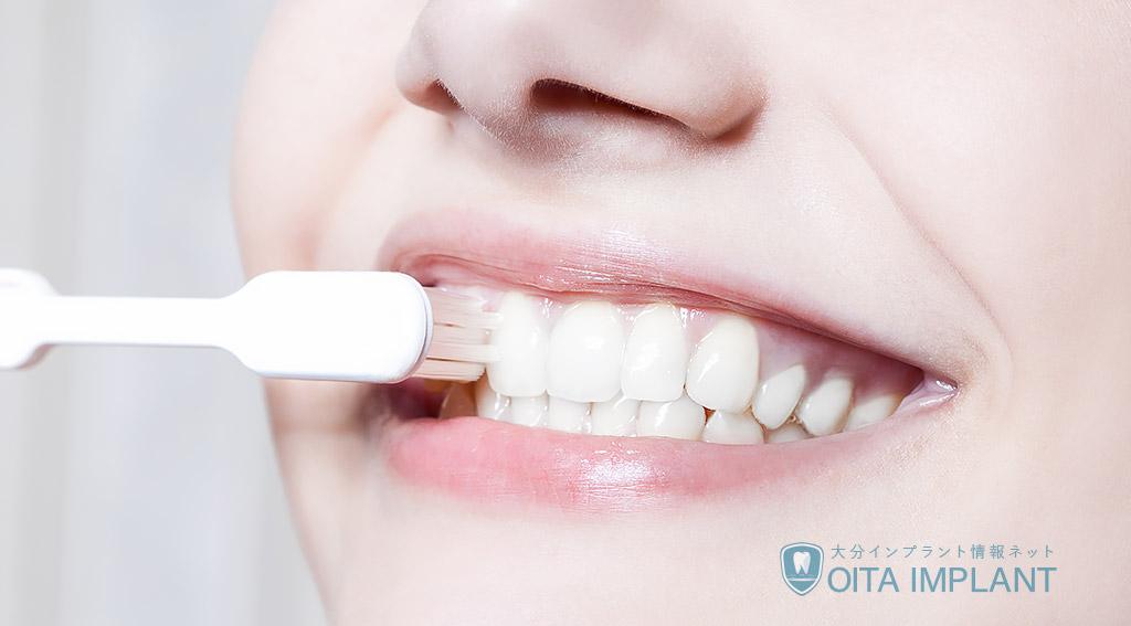 インプラント後の歯の手入れ