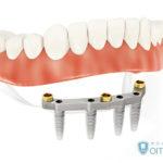 インプラント義歯(入れ歯)とは