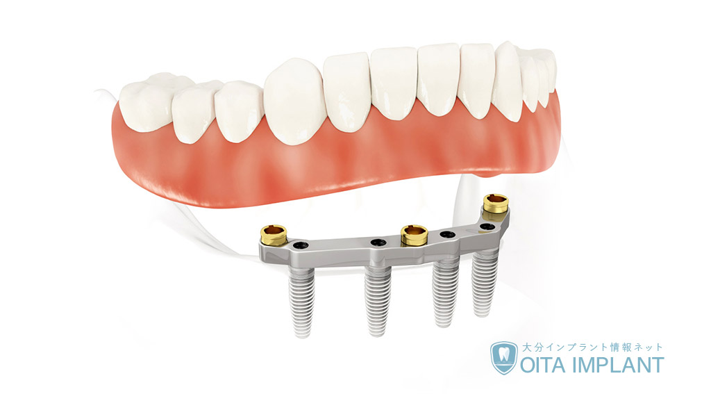 インプラント義歯(入れ歯)