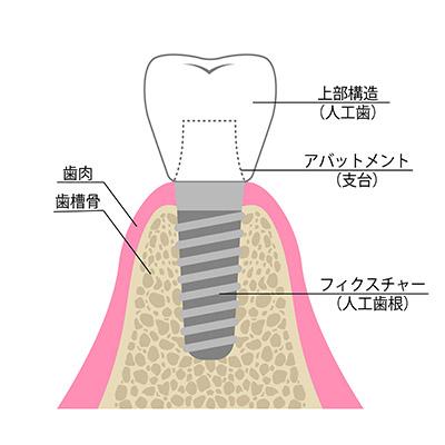 インプラントの構造図