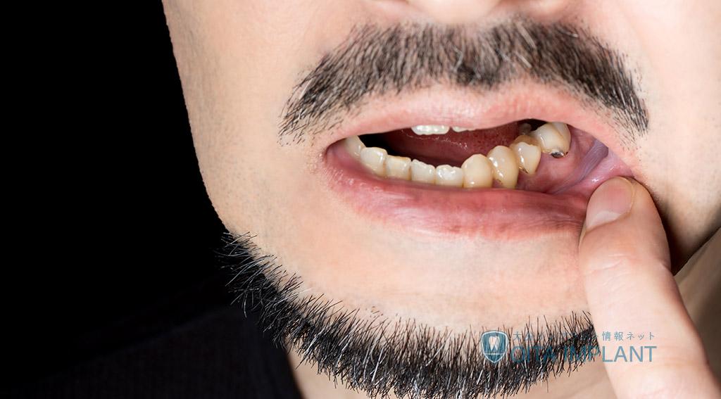 差し歯が取れたら?