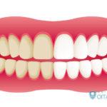 歳をとると歯が黄色くなる?歯が変色する原因