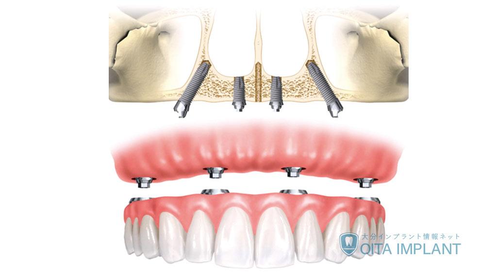抜歯後のインプラント