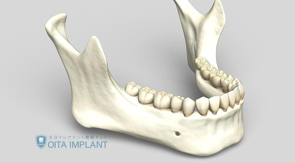 骨量が少ない場合でもインプラントを可能とする「骨造成」とは