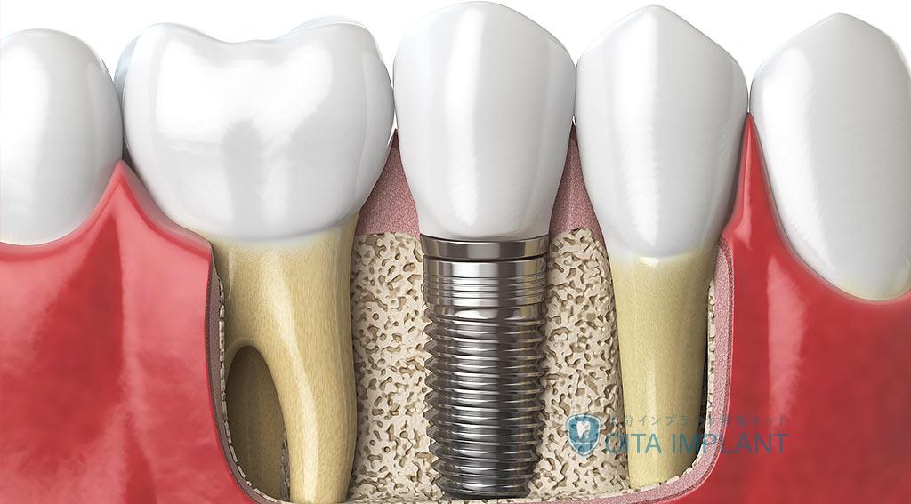 インプラントと天然歯